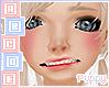 . Facial Deformity