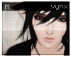 vynx toxic