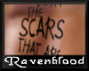 ~RB~ Live with the scars