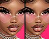 12. Whitney's Skin.