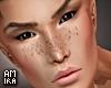 Neil freckles