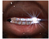 Baguette Diamond Grillz