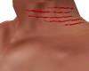scratches neck and back