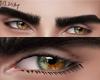 Eyes Heterochromia