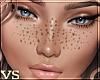{VS} Sexy Freckles!