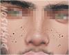 Freckles Boy